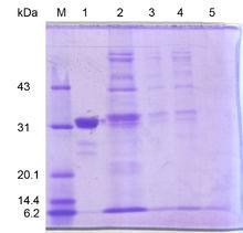 SDS-PAGE 蛋白质凝胶电泳图